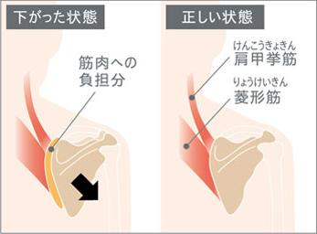 肩甲骨の下がった状態と正しい状態